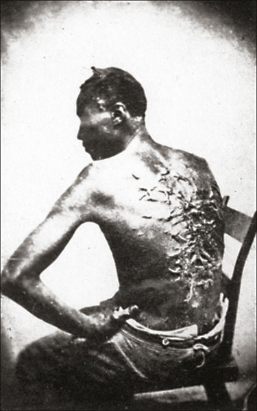File:Slave with scars from whip.jpg
